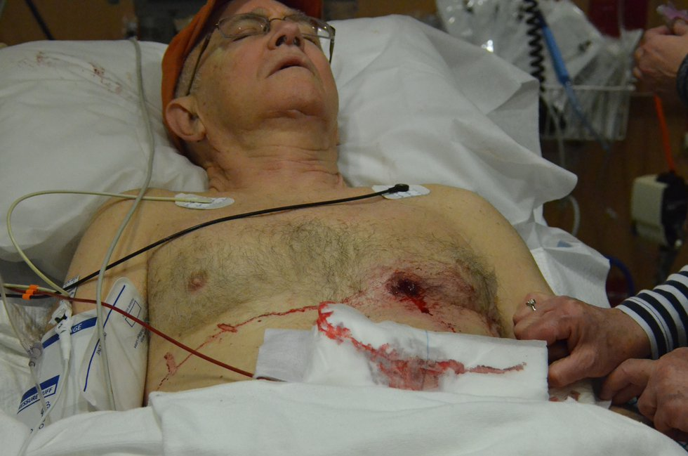 Dr. Sam Hunter in the hospital after being shot on 1-22-2018 at his son's home