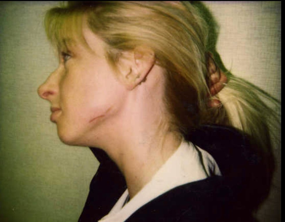 This photo shows the scar on Stephanie Pruitt's face where Russell Bucklew cut her with a...
